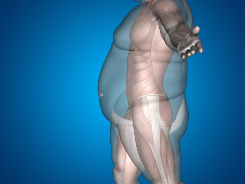 Rapporto sull'obesità in Italia: più a rischio gli uomini, soprattutto al Sud